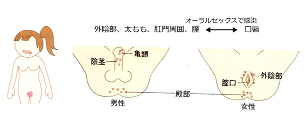 ヘルペス 痛い 性器
